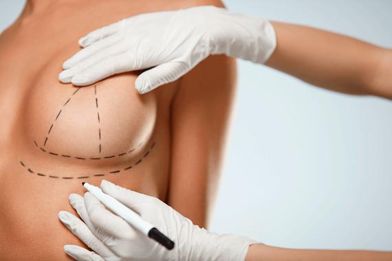 Ventajas lipoestructura mamaria