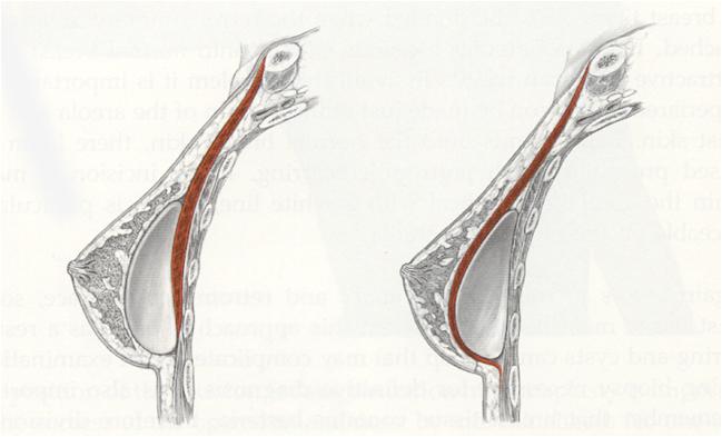 Localización implante la cirugía Dr. Lozano