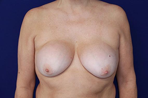 mujer-portadora-protesis-dr-lozano