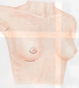 tipos-de-incisiones-operaciones-pecho